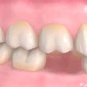 implantes dentales barcelona