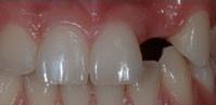 protesis dentales fijas