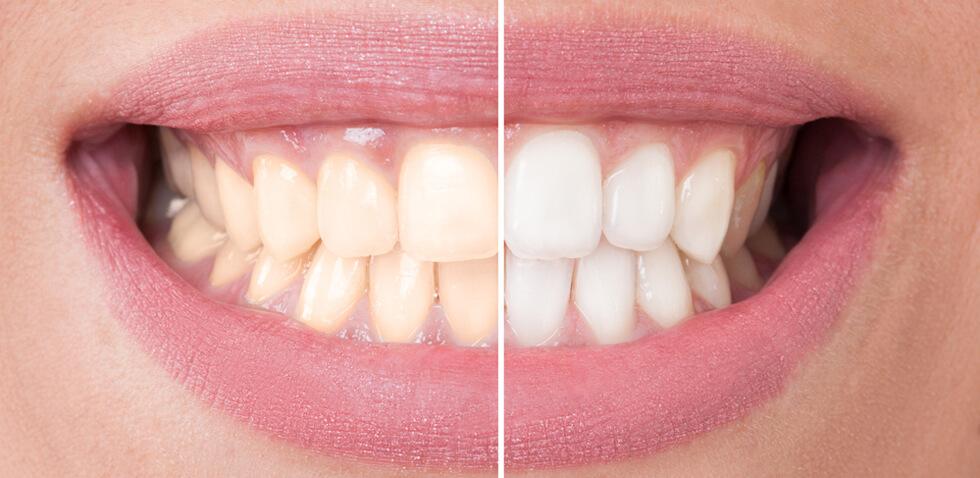 promoción blanqueamiento dental + higiene bucal desde 160€